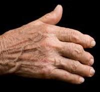 Healing with Vinegar (4) , Arthritis